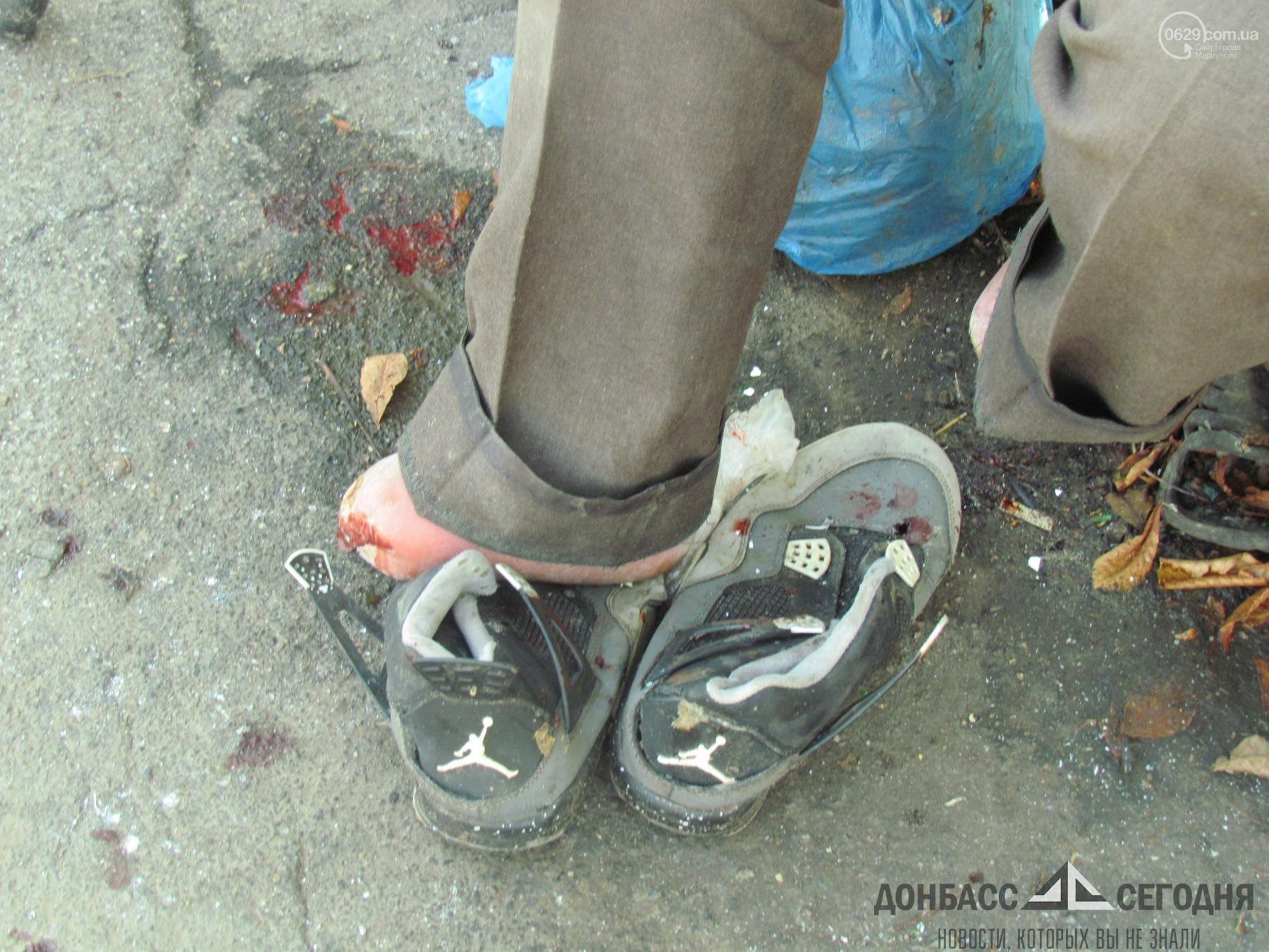 В Мариуполе беженец из Азербайджана остался без ноги из-за новогодней ёлки