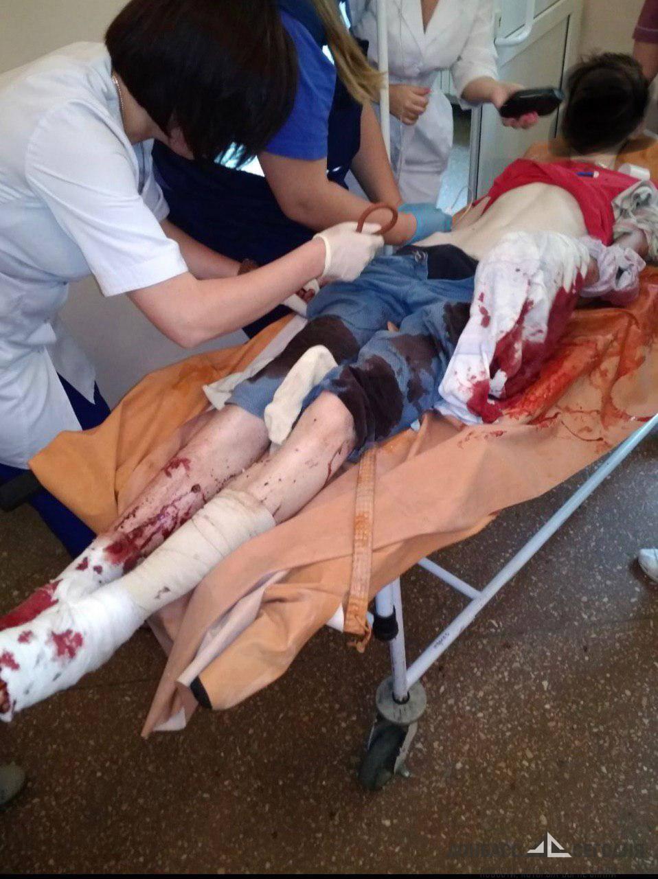 В больницы ДНР вторые сутки поступают раненые под огнём ВСУ